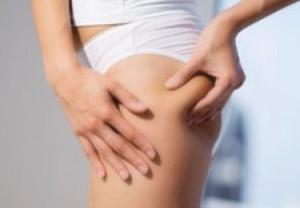 Liposuctia – riscuri si beneficii